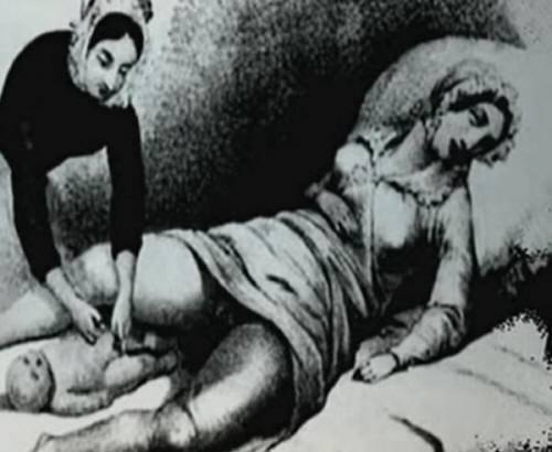 Midwife Birth
