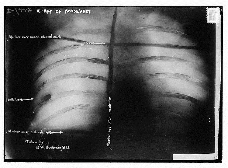 Theodore Roosevelt Bullet X Ray