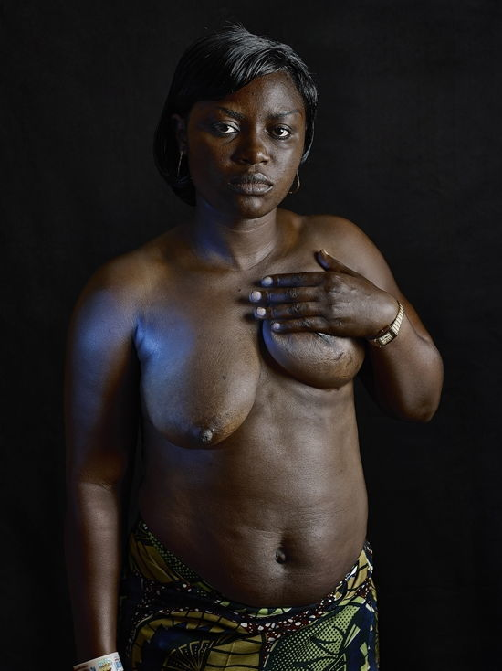 Shine seems breast ironing in cameroon are