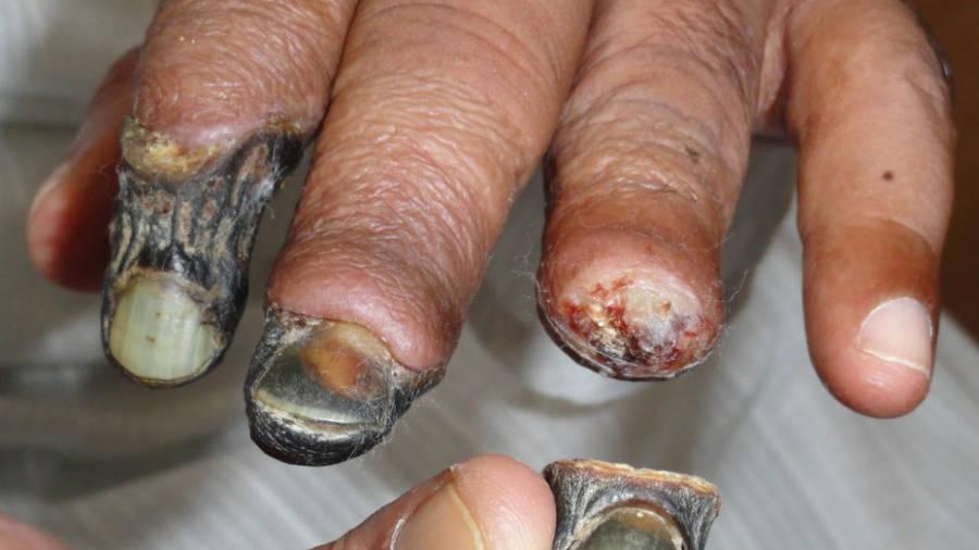 Krokodil Fingers Flesh Eaten