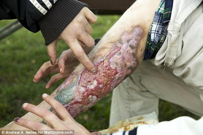 Krokodil Leg Flesh