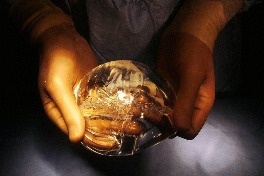 Breast Implant History Silicon Surgical
