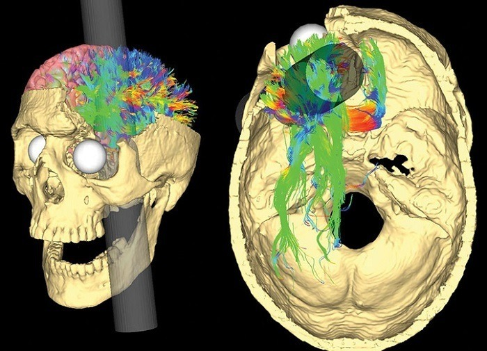 Rod Going Through Skull Of Phineas Gage