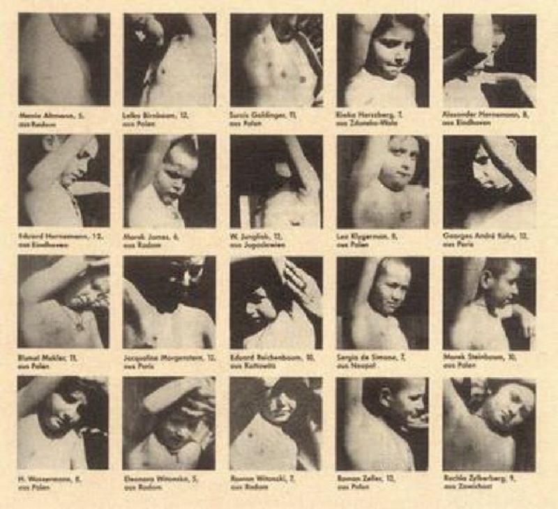 Holocaust sex experiments twins