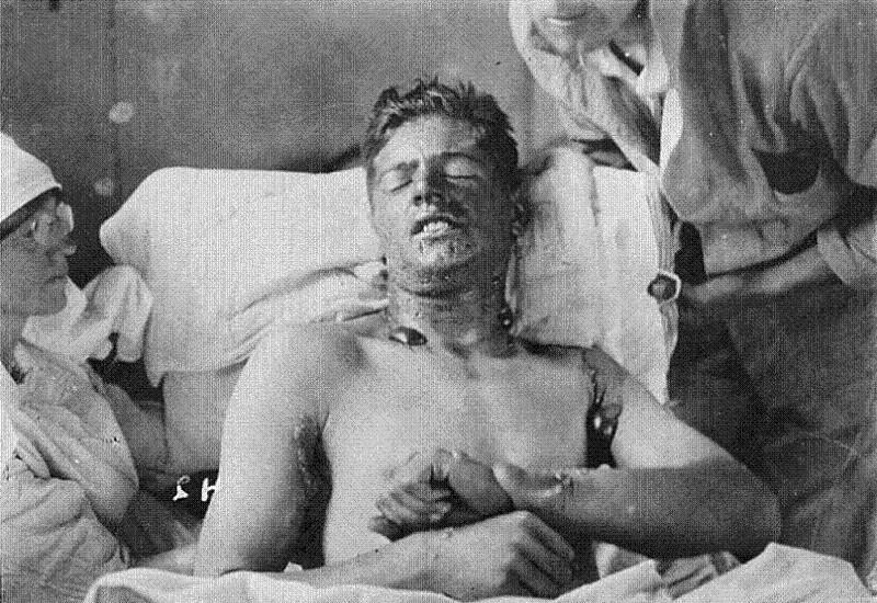 Nazi Medicine Mustard Gas
