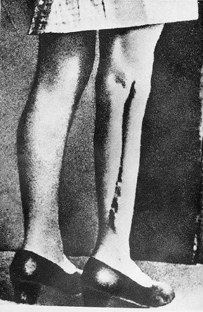 Nazi Medicine Ravensbruck Leg