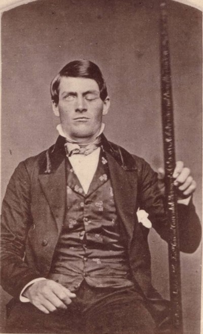 Phineas Gage, holding the rod that shot through his skull. Image ...
