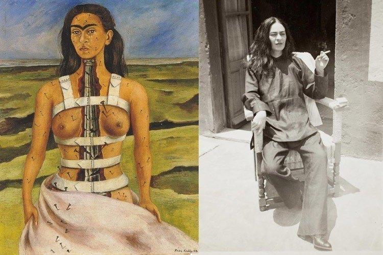 Frida Kahlo Life Broken Column Wheelchair