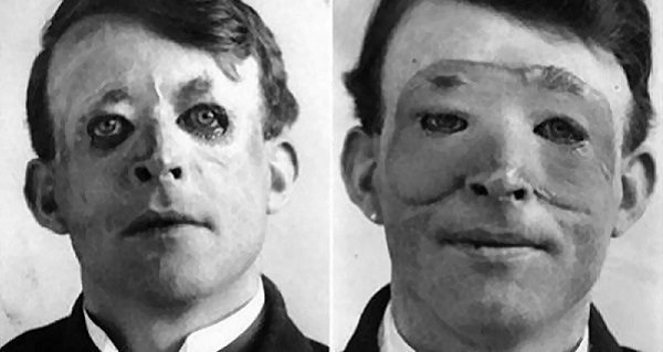 Walter Yeo The Story Of The First Plastic Surgery Patient