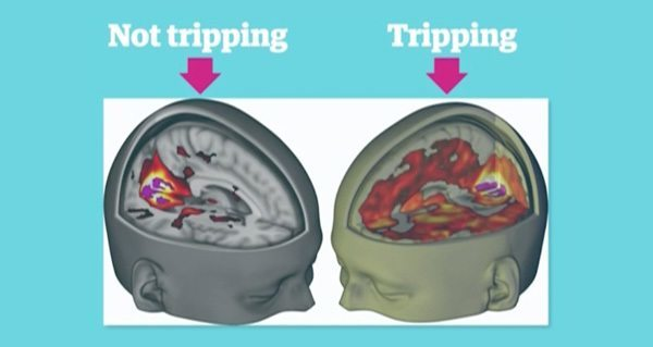 a study of lsd or lysergic acid diethylamide Home » drugs » recreational drugs » top 10 benefits and uses of lsd - and potential risks, side effects top 10 benefits introduction to lysergic acid diethylamide (lsd) lysergic acid one study reviewed the use of lsd in the treatment of drug dependencies and results showed that it.
