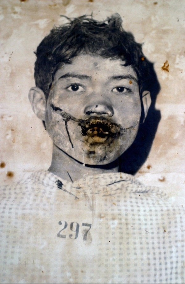 Tortured Khmer Rouge Victim