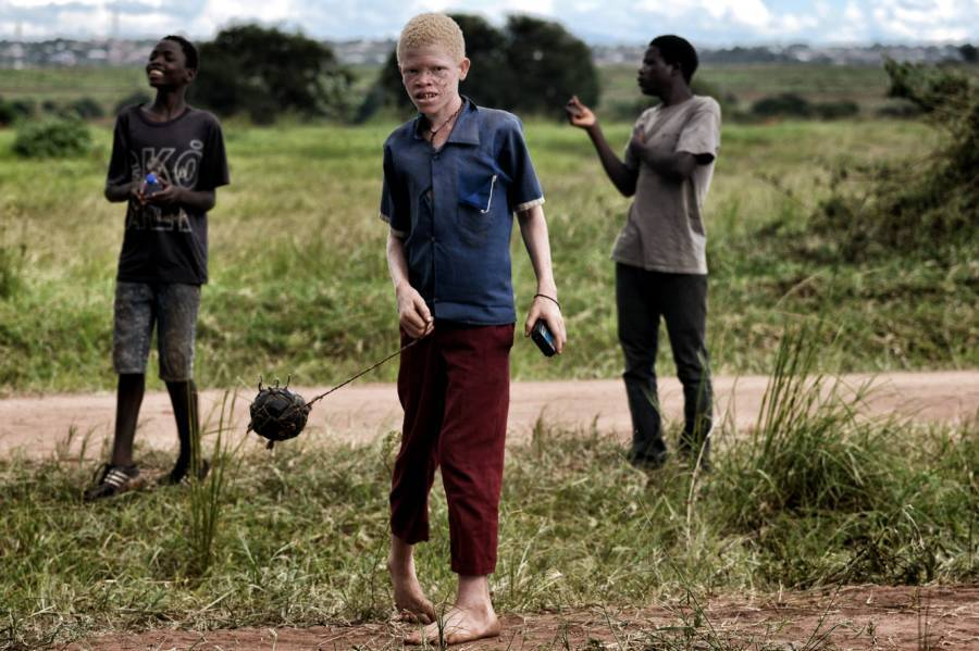 Albino Boy In Africa