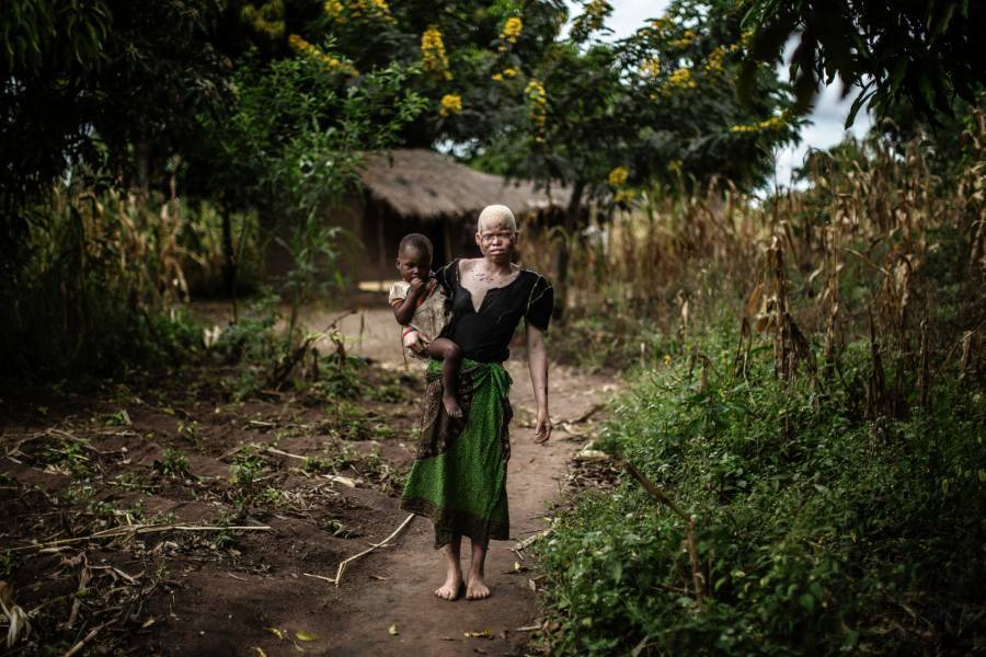 Albino Person In Malawi