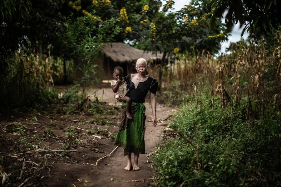 Albino Person In Malawi