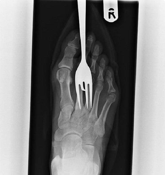 Fork In Foot Xray Image