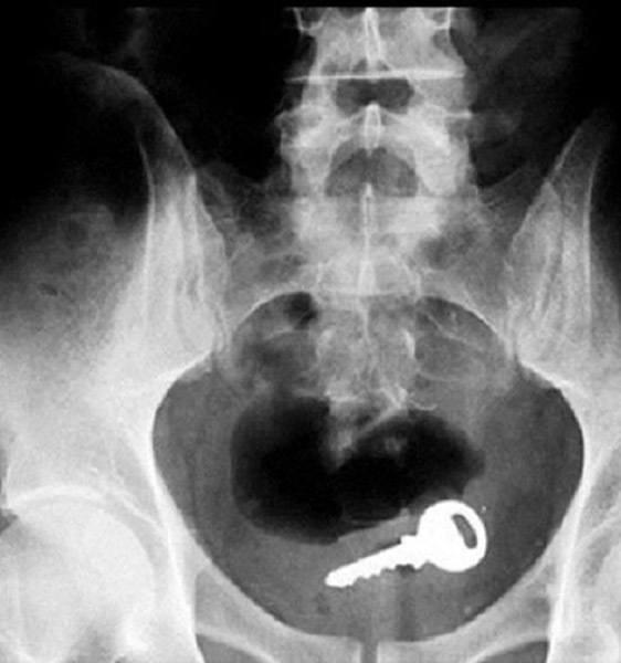 Weird X Rays Key