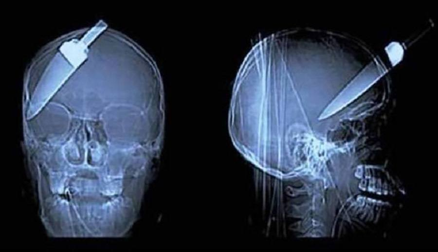 Knife In Head X-Ray