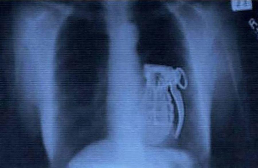 Weird X Rays Live Grenade
