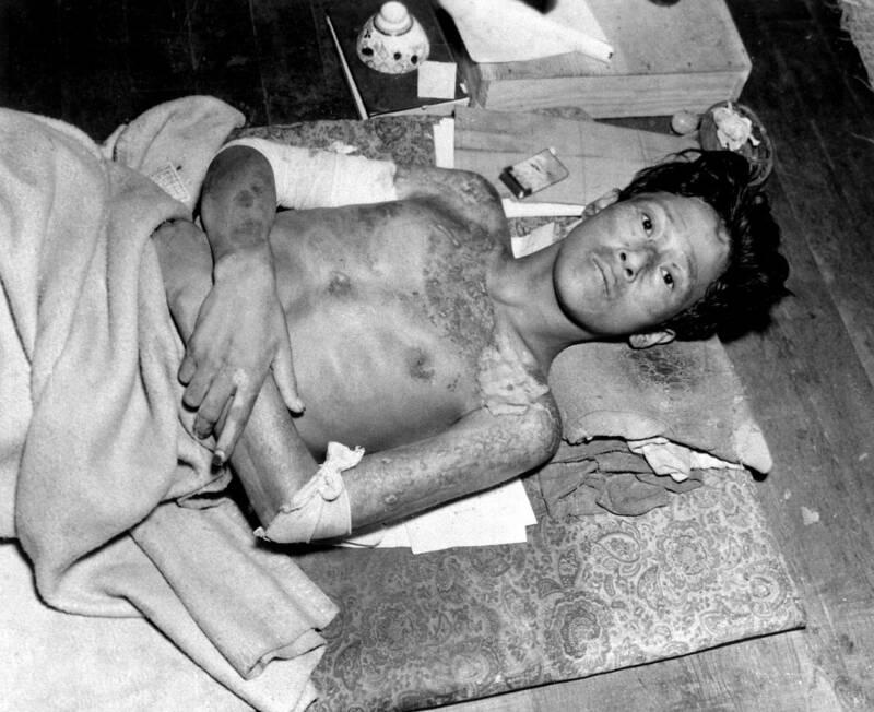 Nagasaki Bombing Victim