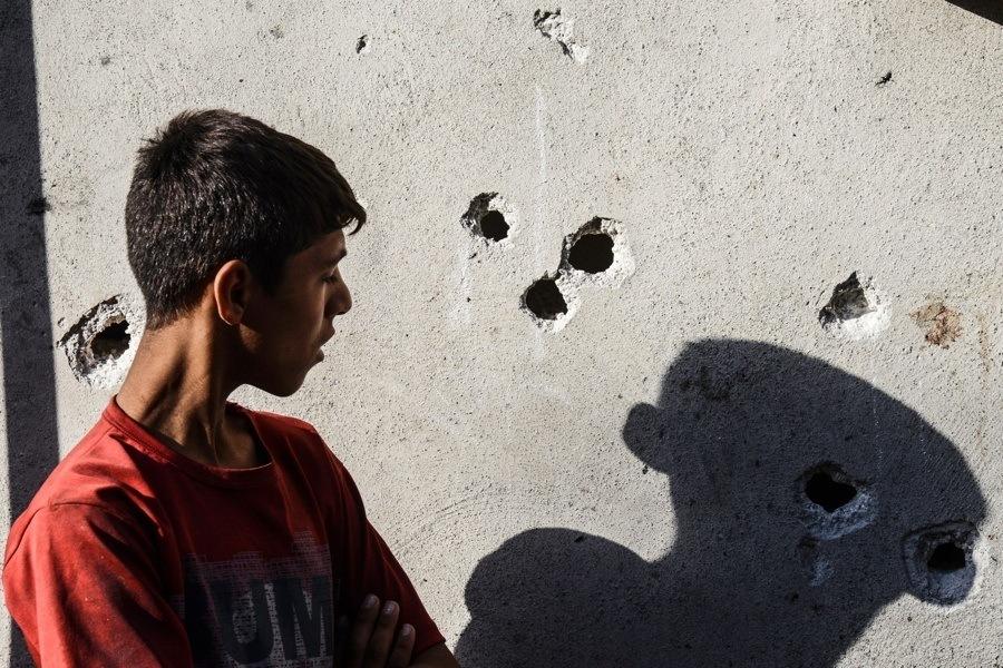 Boy Bullet Holes