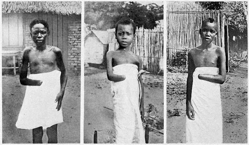 King Leopold II With Child Amputees