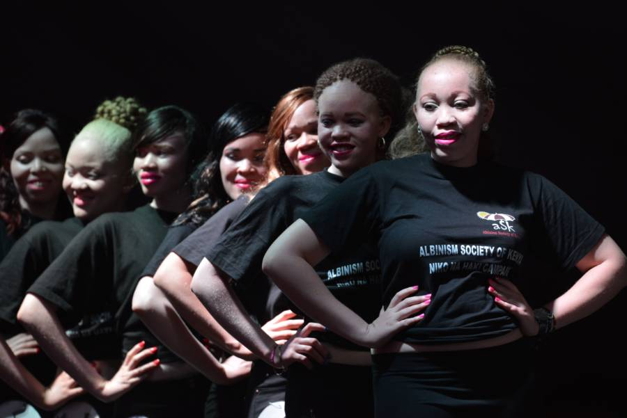 Albino Beauty Pageant Group
