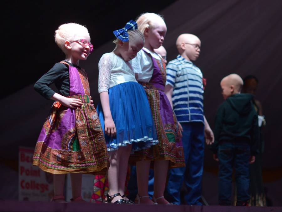 Albino Beauty Pageant Kids