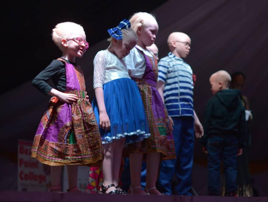 Albino Beauty Pageant Kids