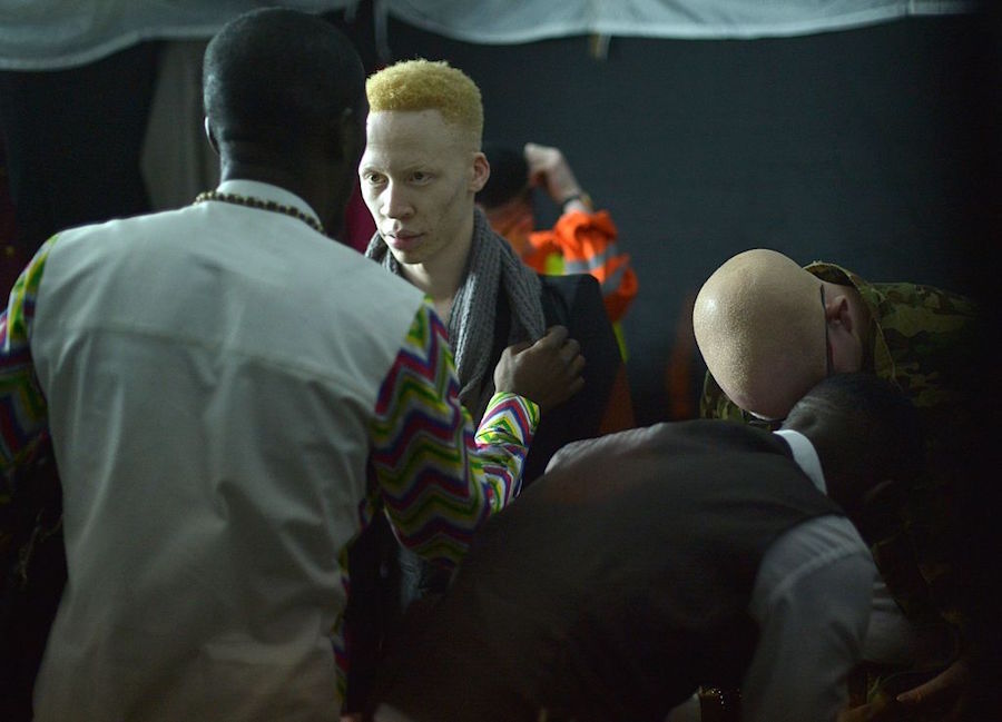 Albino Beauty Pageant