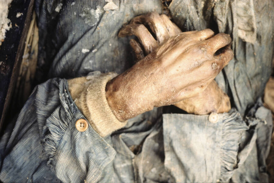 Hands Of One Of The Franklin Expedition Bodies