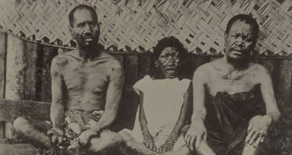 5 Diseases Whose Origins Medical Experts Got Entirely Wrong | 600 x 319 jpeg 115kB
