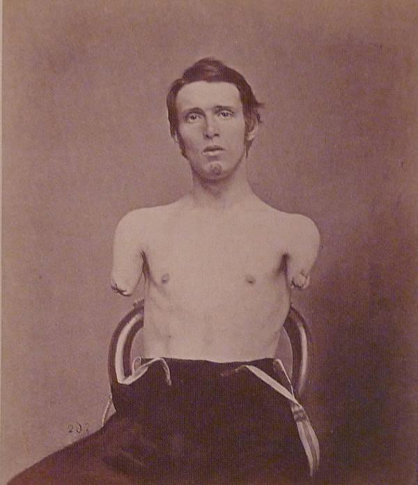 Alfred A Stratton