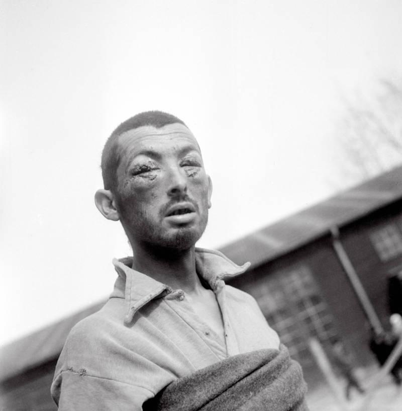 Holocaust Prisoner With Damaged Eyes