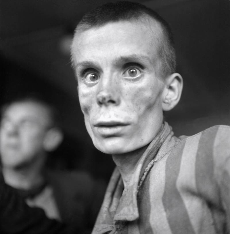 Emaciated Holocaust Victim