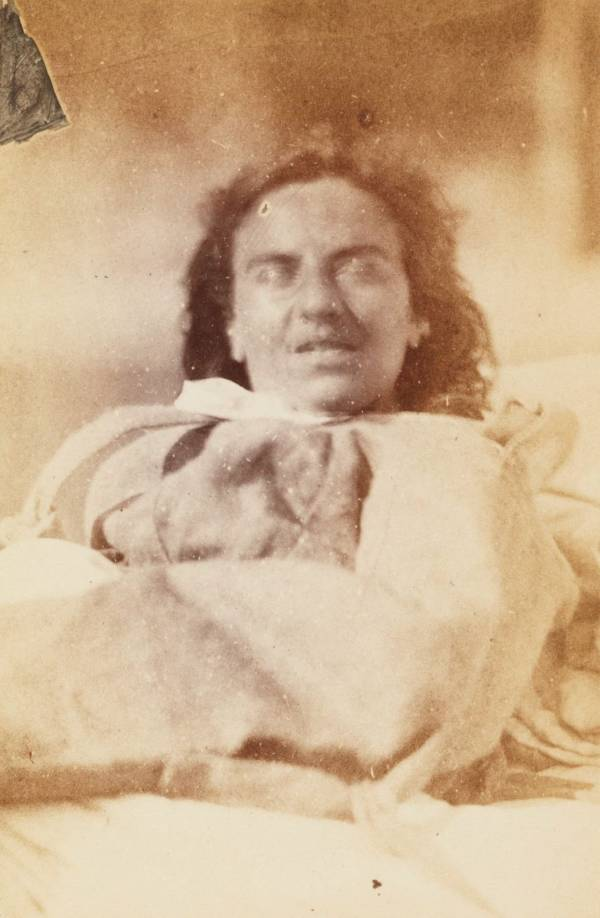 Hysterical Women 1870s Eyes