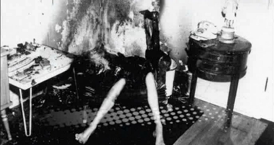 Woman Legs Chair Burned