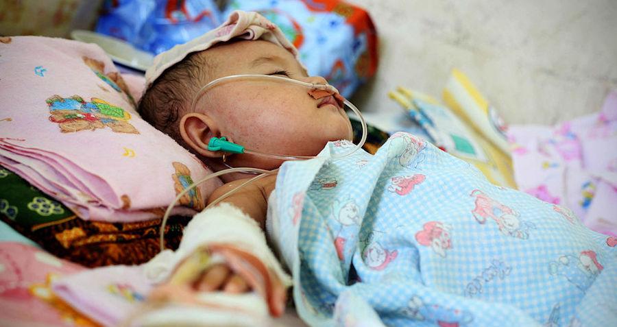 Pioneering Procedure Cures Infants' Leukemia, Could