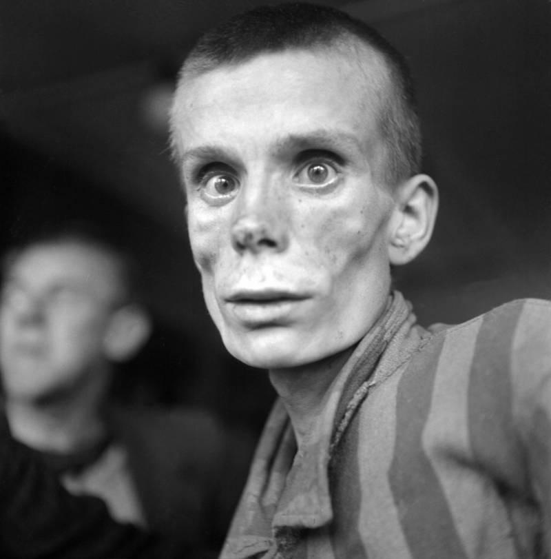 Emaciated Prisoner