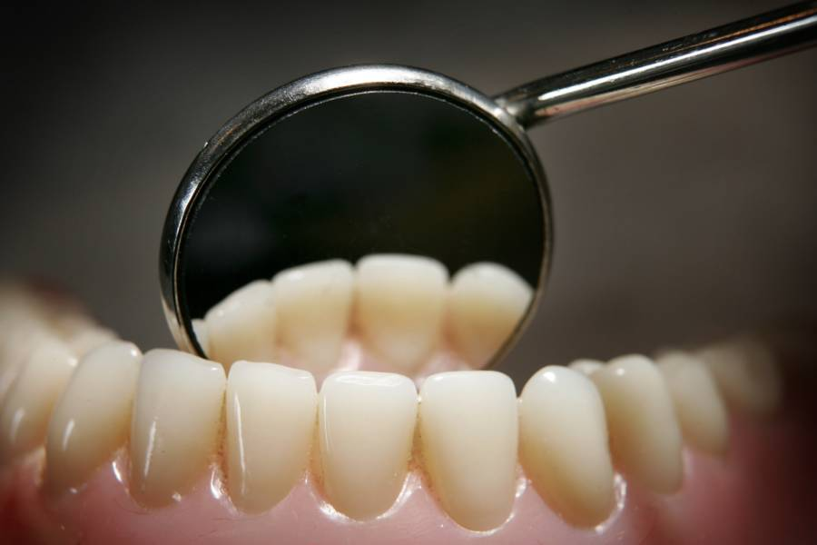 Teeth Mirror