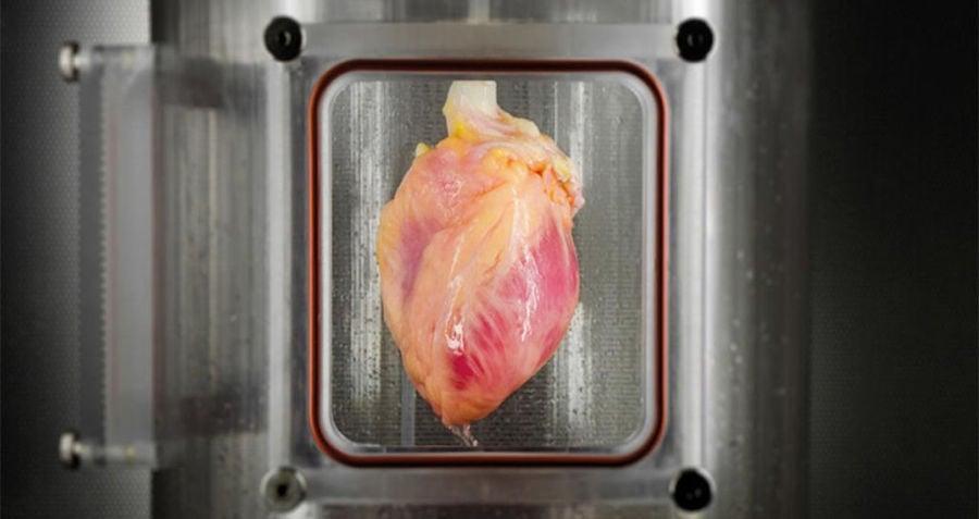 Human Heart Transplant
