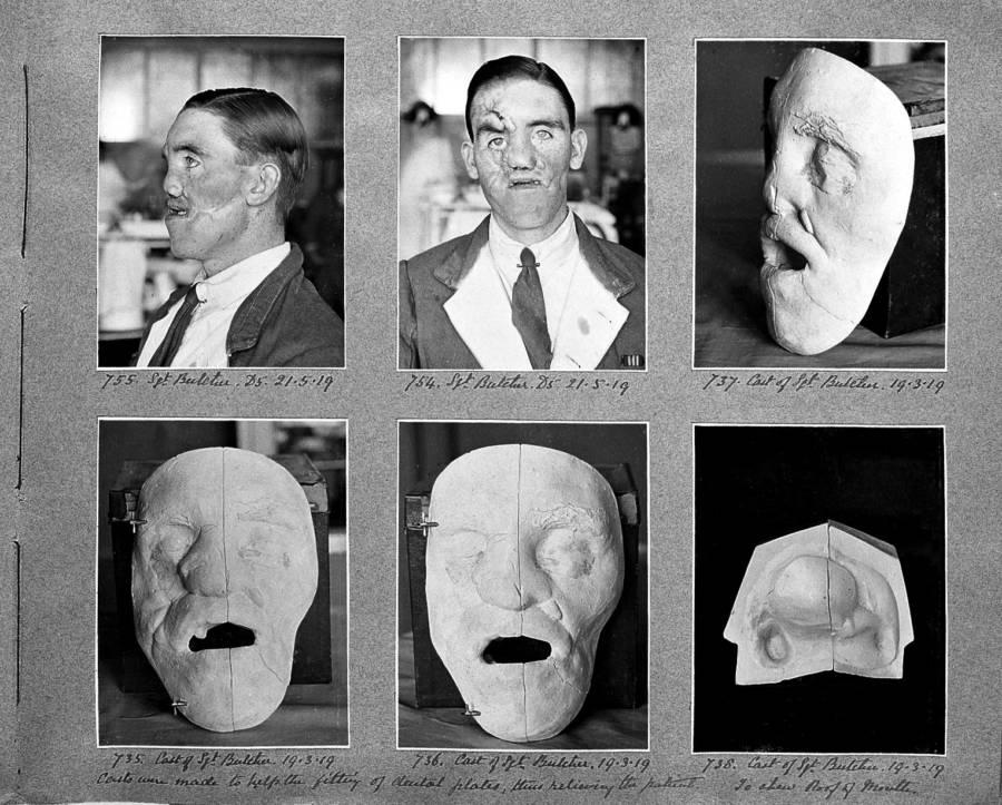 Plastic Surgery Mask