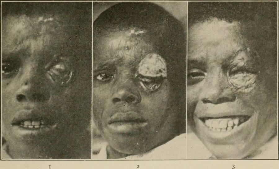 Plastic Surgery New Eyelids