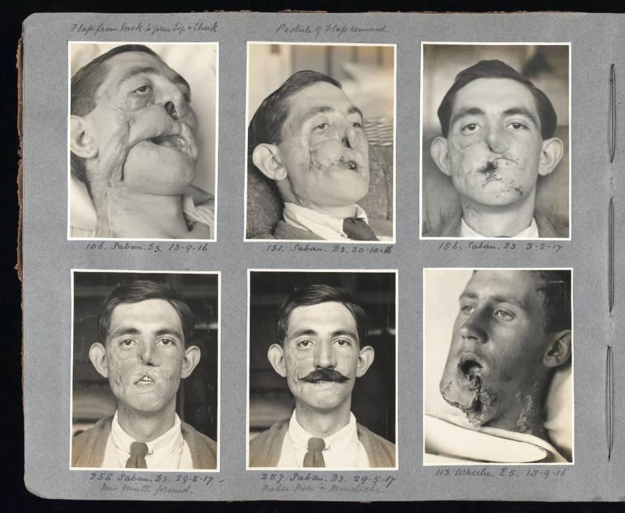 WWI Soldier Hiding Surgery