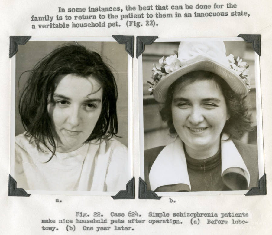 Schizophrenia Patient Before And After A Lobotomy