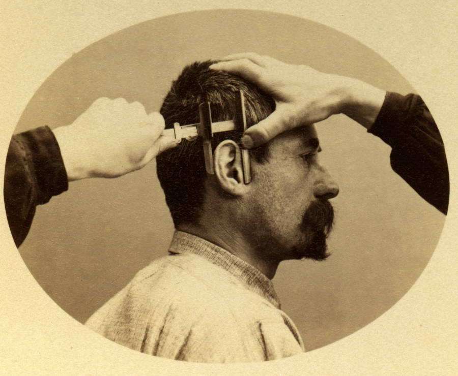 Bertillon Ear Measurement