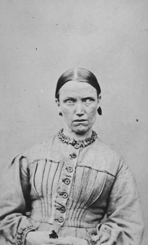 Female Patient Unusual Eyes