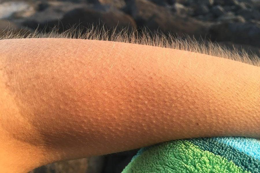 Goosebump Arm