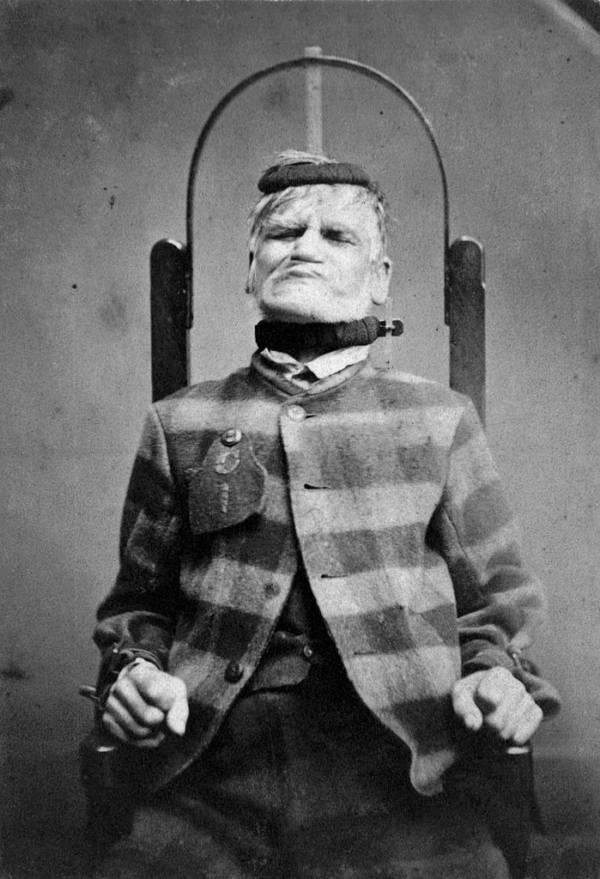 Mental Asylums Chair Straps