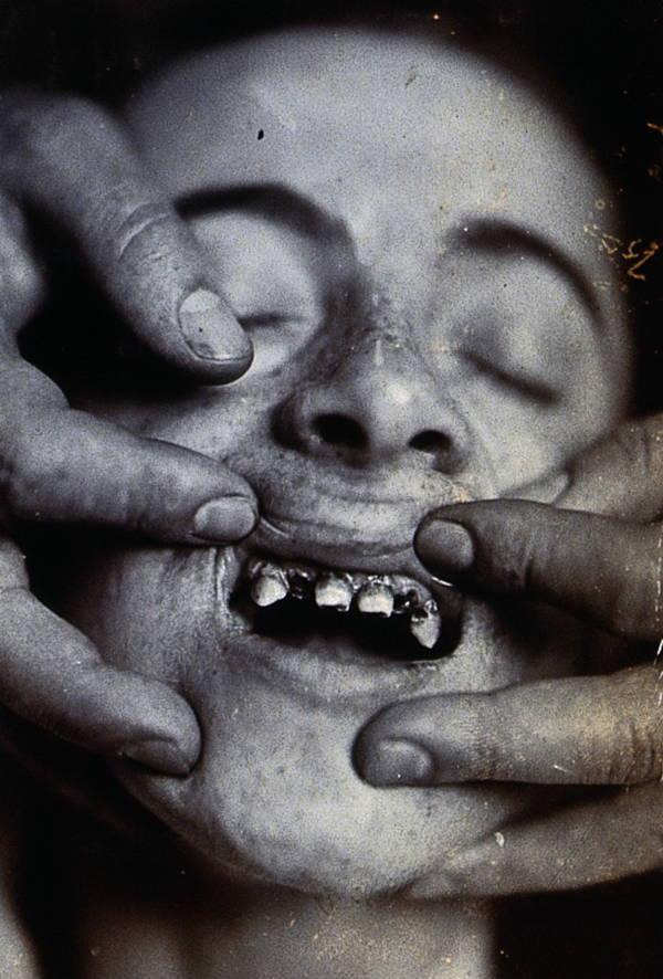 Rotted Teeth