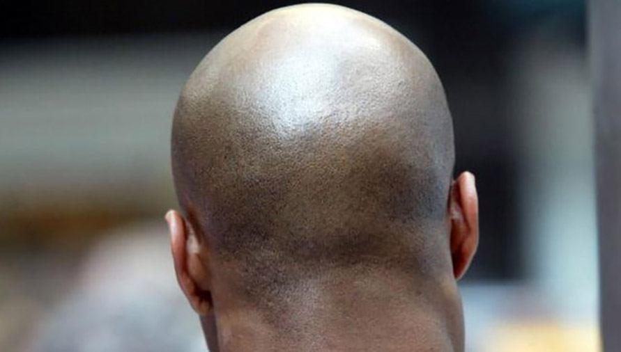 Bald Back
